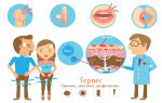 Герпес: фото симптомов болезни и лечение