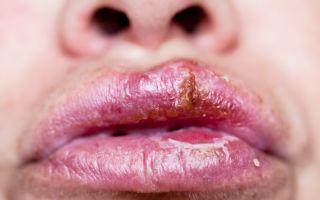 Сифилис шанкр — фото