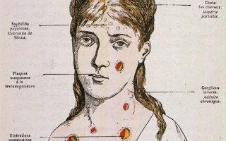 Третичный сифилис и его проявления у мужчин и женщин