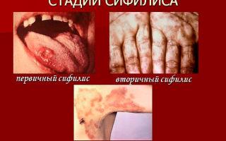 Стадии сифилиса и особенности их течения