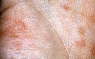 Вторичный сифилис фото