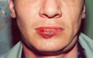 Первичный сифилис — фото на разных участках тела