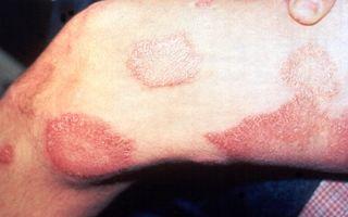 Язвы при сифилисе — фото