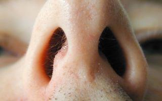 Первые признаки сифилиса — фото