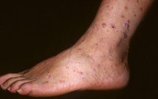 Кожные проявления сифилиса — фото