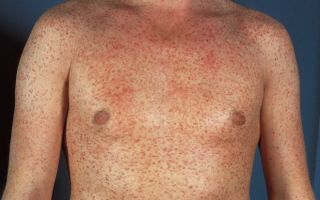 Третичный сифилис фото