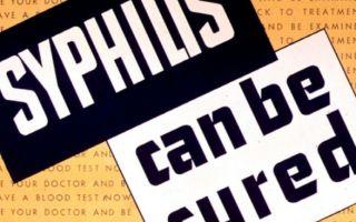 Симптомы сифилиса. Как проявляется смертельная болезнь