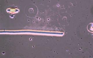 Высыпания при сифилисе — как выглядят и как лечить?