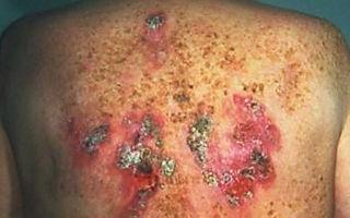 Гонорея у мужчин: фото симптомов и признаков, лечение болезни