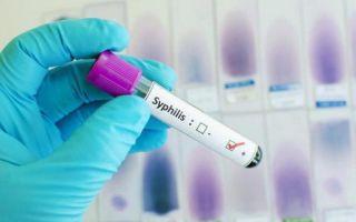 Признаки сифилиса на разных этапах развития