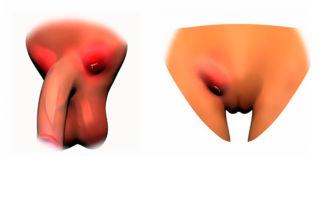 Хламидиоз — фото, симптомы и лечение. Выделения при хламидиозе