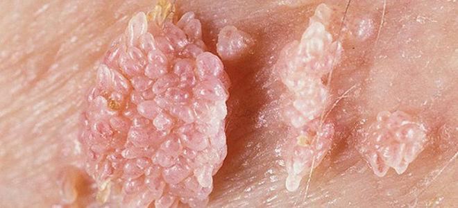 Генитальный герпес у женщин: фото, симптомы, лечение