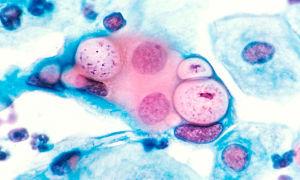 Точная диагностика сифилиса методом иммуноферментного анализа (ИФА)
