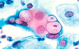 ИФА и его роль в диагностике сифилиса