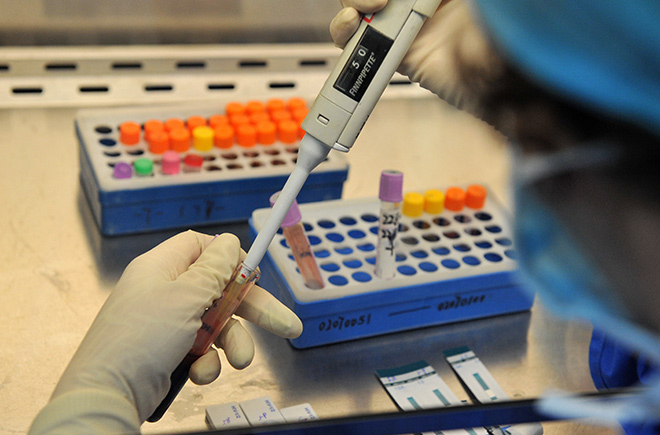 Сколько делается анализ на сифилис