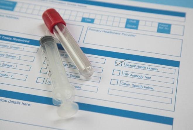 Диагностика заболевания сифилис