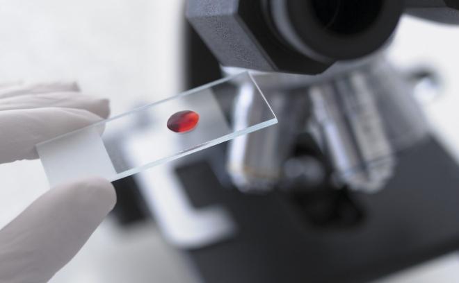 Исследование крови на сифилис