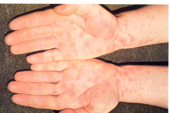 проявление сифилиса на ладонях