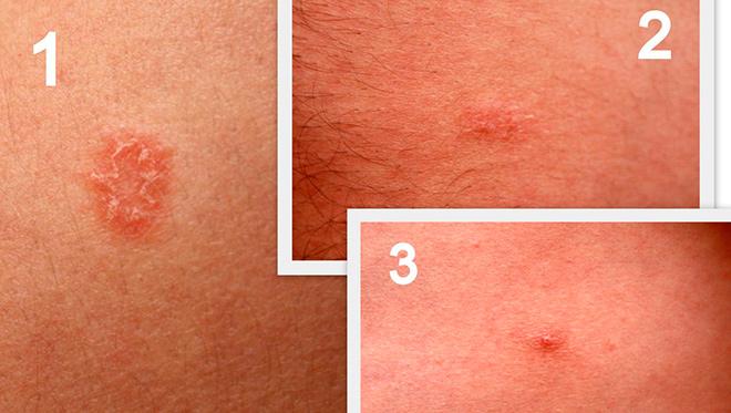 сифилис кожи