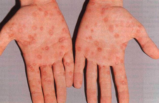 первичный сифилис лечение