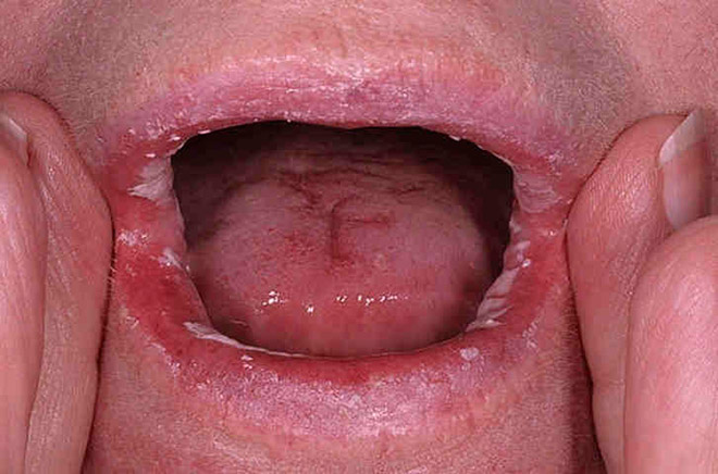 Syphilis from oral sex