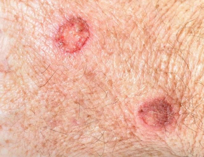 Язвенные поражения кожи при сифилисе