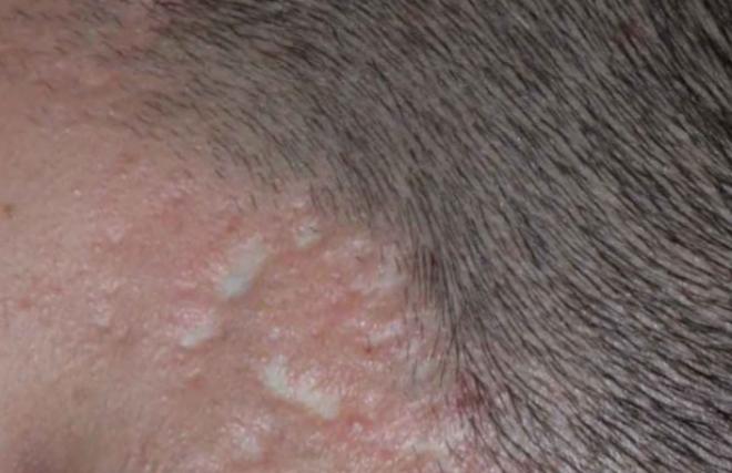 Рубцы на лице при сифилисе
