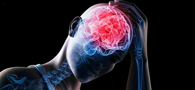 сифилис мозга и прогрессивный паралич