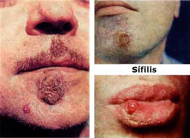 Мужчины, больные сифилисом