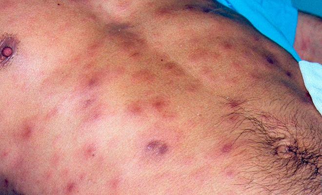 Симптомы сифилиса на теле