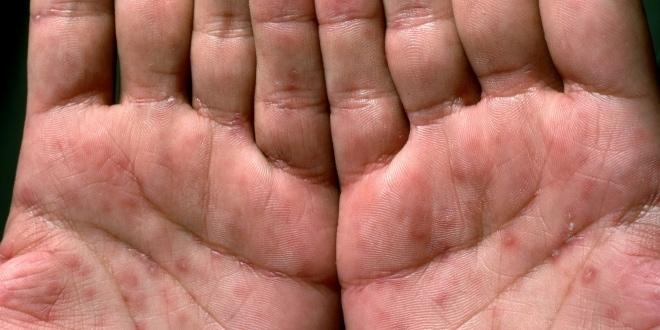 Проявления сифилиса на ладонях