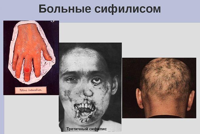 сифилис 3 стадии
