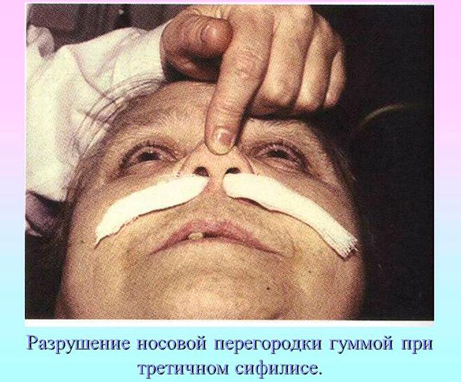 Больной третичным сифилисом
