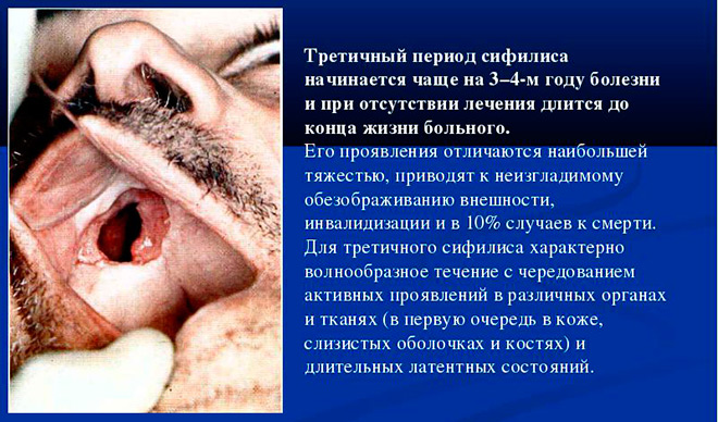 третичный сифилис и его лечение