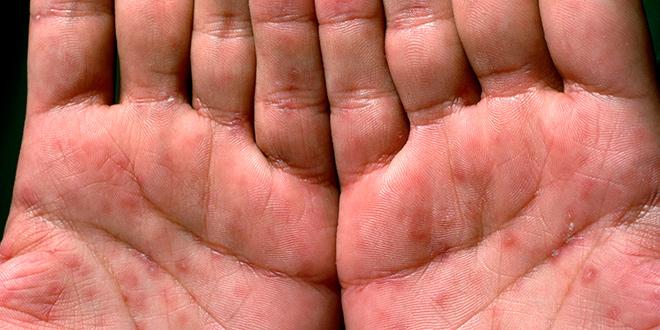 Вторичный сифилис, проявляющийся на руках