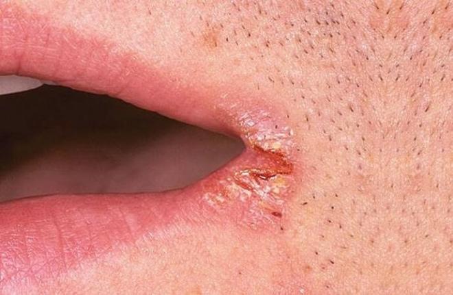 Сифилис в уголках рта