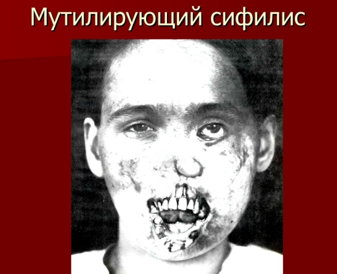 Сифилис лица мутирующий