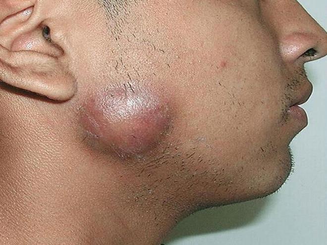 Воспаление лимфосистемы при шаркноиде