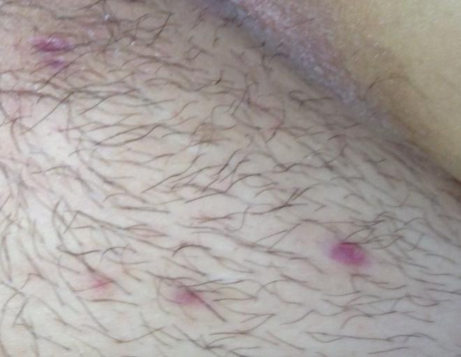 Сифилитические высыпания на женских половых органах
