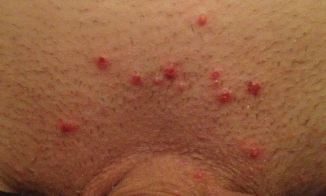 фолликулит при сифилисе на лобке