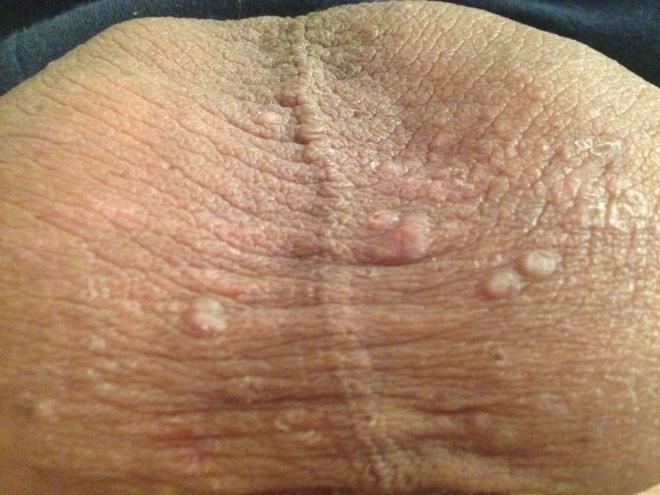 Первые признаки сифилиса у мужчины