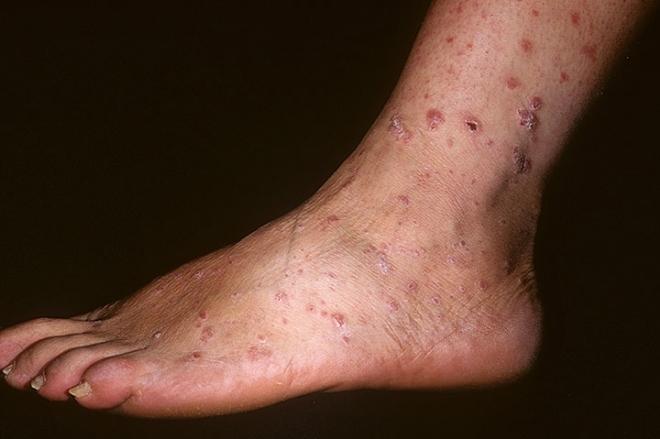 Прогрессирующий сифилис