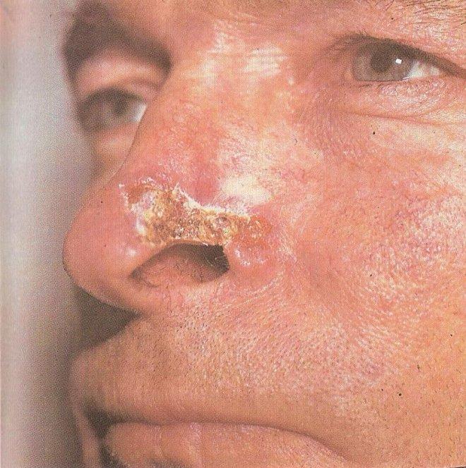 Деформация носа из-за сифилиса