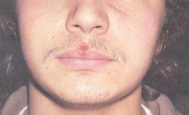 Сифилитический шанкр на лице
