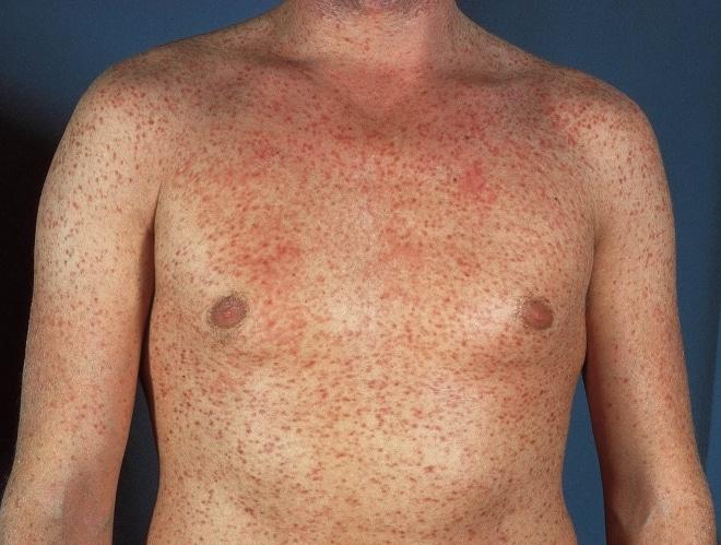 Множественные высыпания при сифилисе