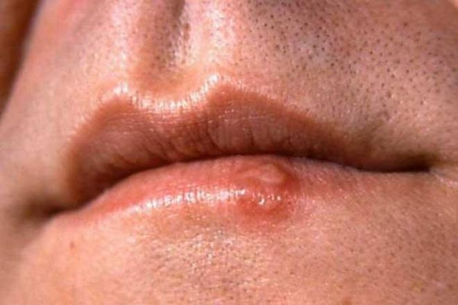 Сыпь при сифилисе на губах