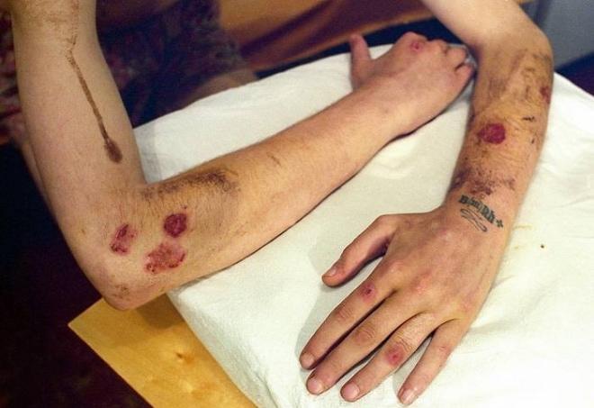 Симптомы сифилиса на фоне ВИЧ