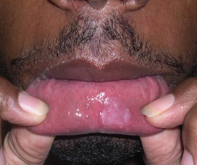 Язва на губах при сифилисе