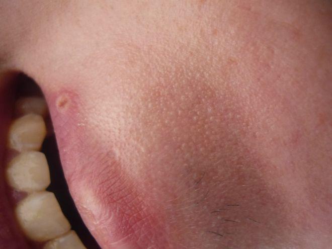 Герпес  типы симптомы и причины