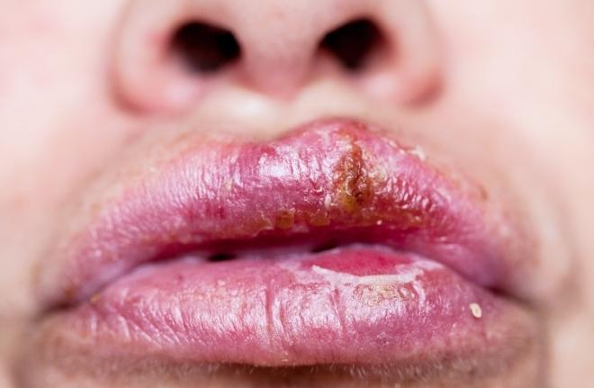 Симптомы сифилиса на губах